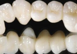 Zirkonyum diş tedavisi
