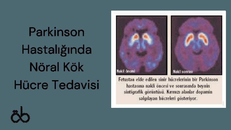Parkinson Hastalığında Nöral Kök Hücre Tedavisi